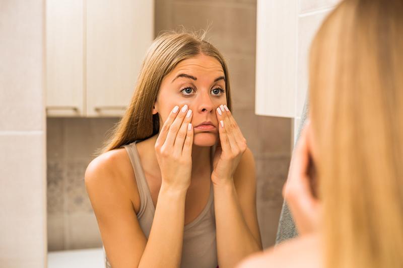 Domowe sposoby na opuchniętą twarz