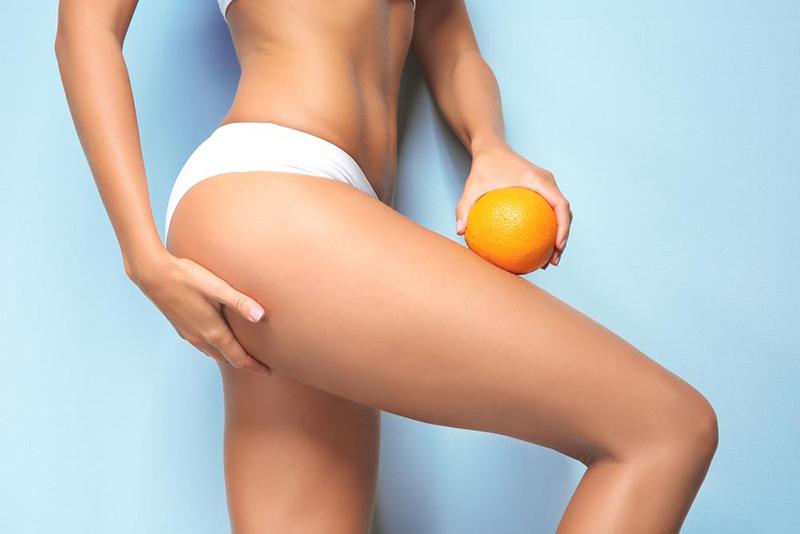 10 mitów o cellulicie